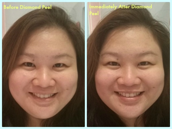 Blushing Beauty Diamond Peel Review Facial RESULTS