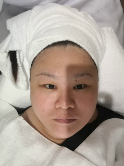 Shiseido Facial Before 2
